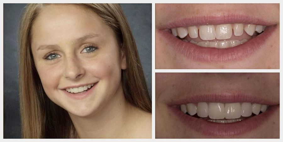 Actual before and after photos of a patient with prepless veneers