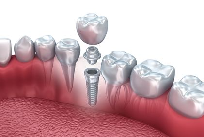 Digital illustration showing how a crown attaches to a dental implant with an abutment