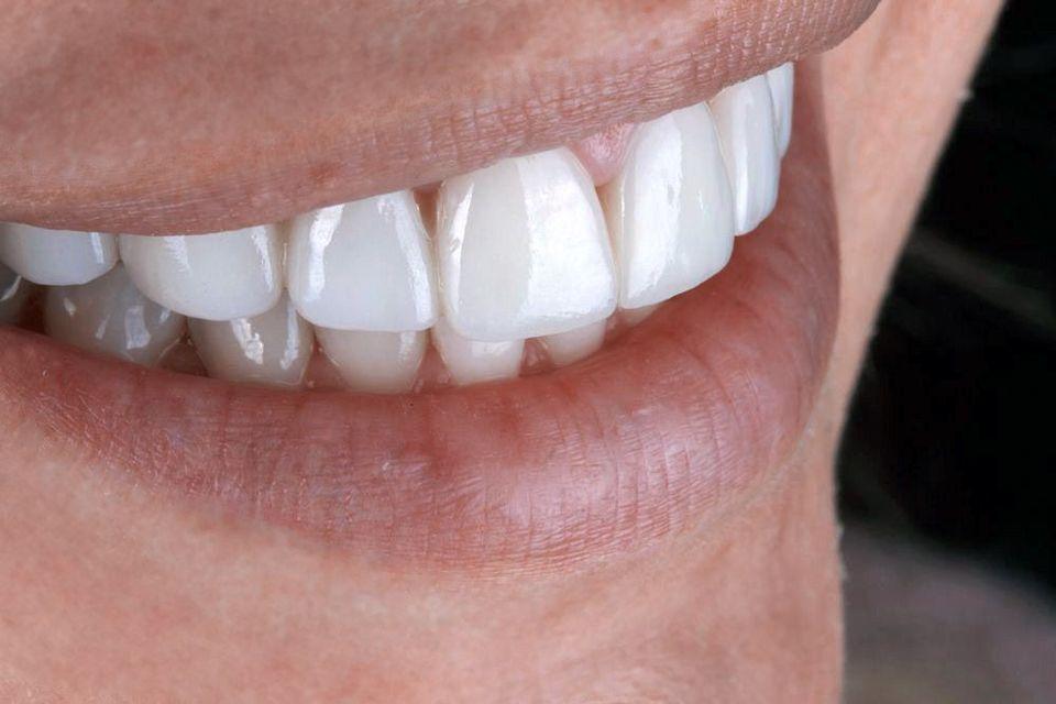 Close-up of a patient after porcelain veneers treatment.