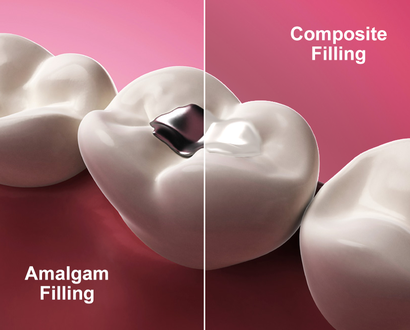 Amalgam vs. white dental filling