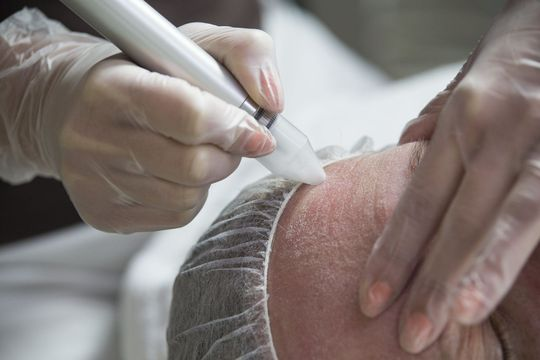 Dermabrasion device being applied to a person's forehead