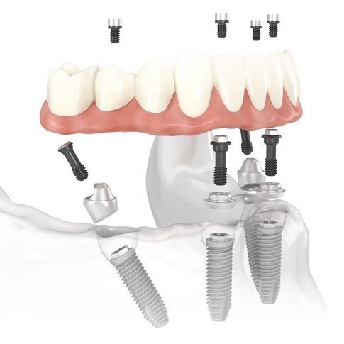 All-on-4® dental implants.