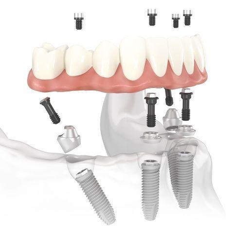 All-on-4® dental implants.