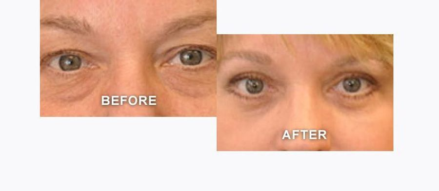 Photos of eyes with lines depicting blepharoplasty incisions