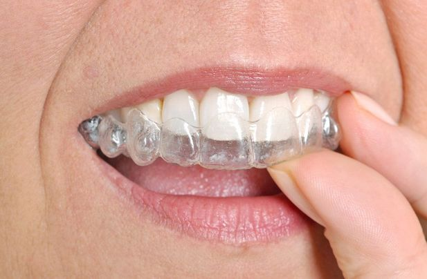 Woman putting clear plastic tray over her teeth