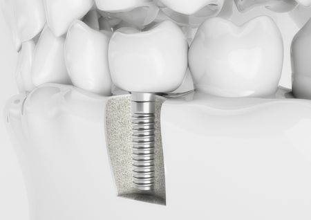 Dental implant embedded in model of jaw