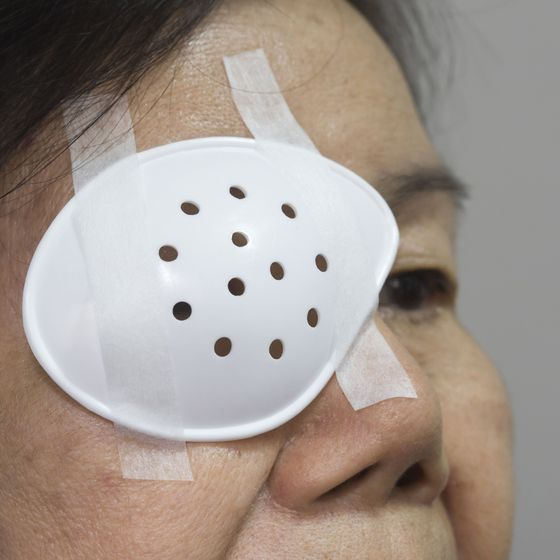 Photo of woman with eye shield after cataract surgery