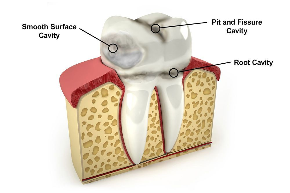 illustration of types of cavities