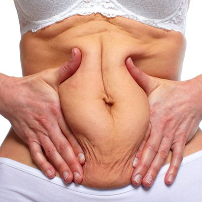 A woman pushes her tummy fat together