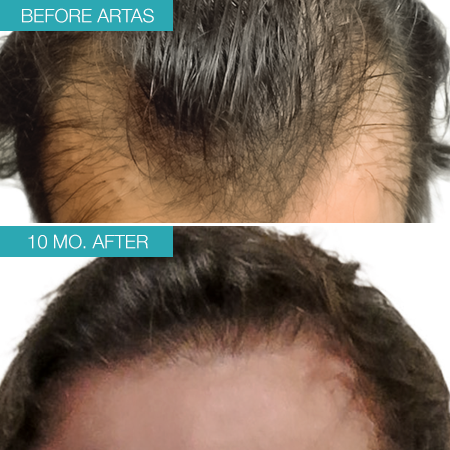Patient 2's head before and after treatment with ARTAS