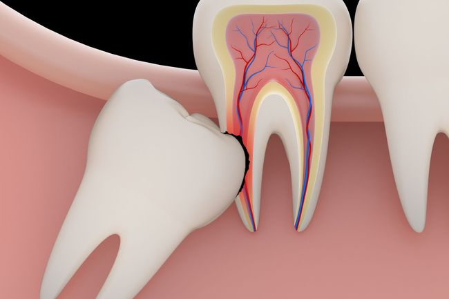 Tooth Extraction Newtown Pa Pearl Dental Arts