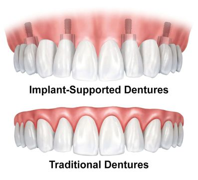 Illustration comparing implant-supported dentures to traditional dentures