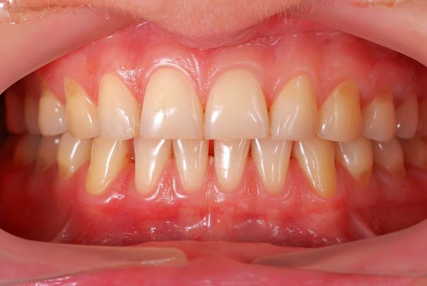 image of smile after laser gum reshaping