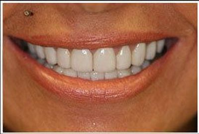 After porcelain veneers treatment
