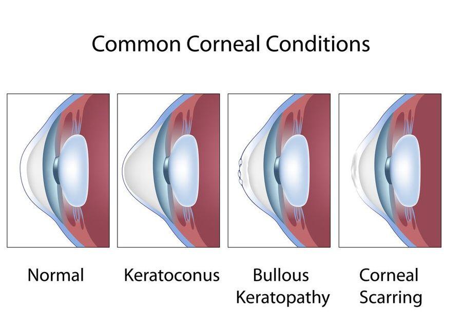 corneal diseases