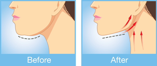 Illustrated before and after images of a Kybella® patient.