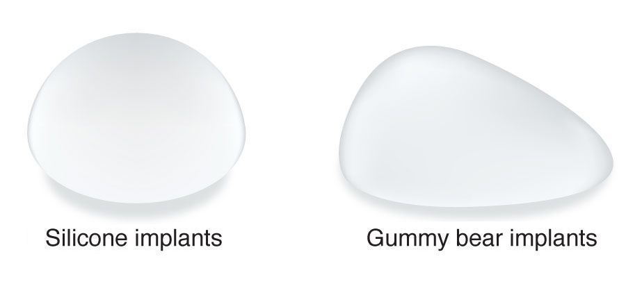 Side-by-side comparison of silicone implant and gummy bear implant.