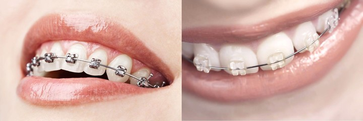 metal vs ceramic braces