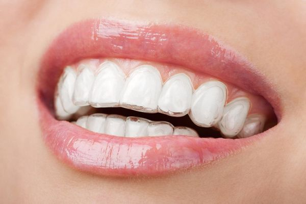 Close up of woman's teeth and Invisalign tray