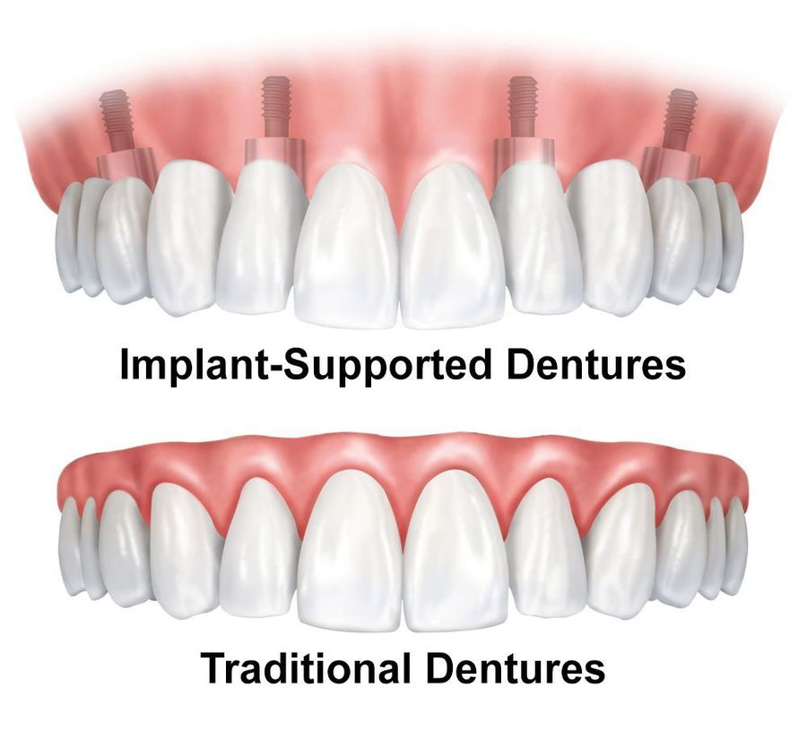 illustration of implant-supported dentures vs. traditional dentures