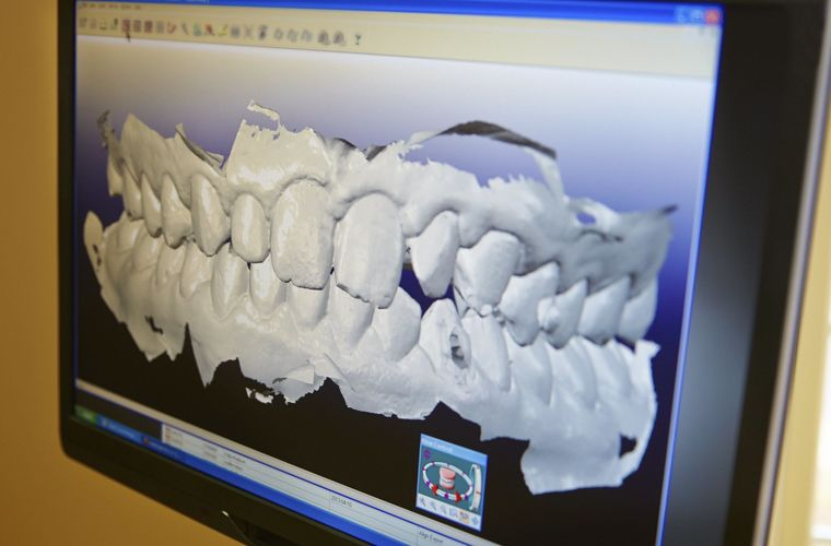Digital recreation of a patient's oral cavity.