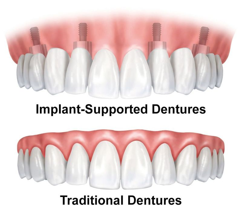 illustration of dentures
