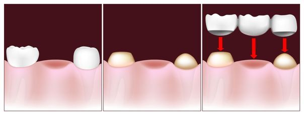 Image of dental bridge placement