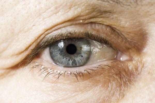 A close up of a sagging upper eyelid