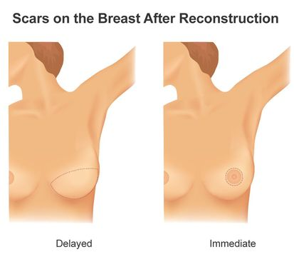 Illustration comparing scars from immediate and delayed breast reconstruction