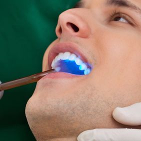 A male patient receiving an oral cancer screening with a blue light