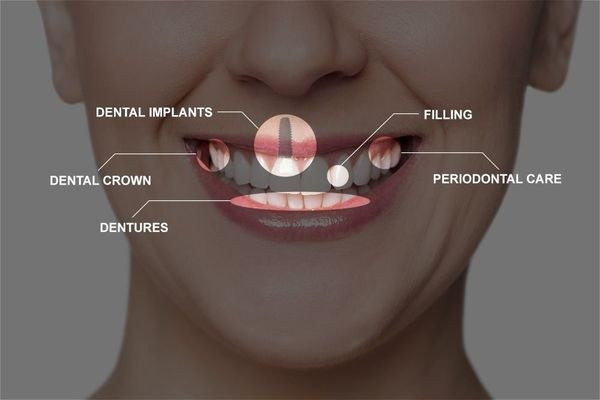 Diagram showing woman's smile and examples of dental treatments