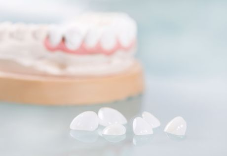 Photo of porcelain veneers with a mold in the background
