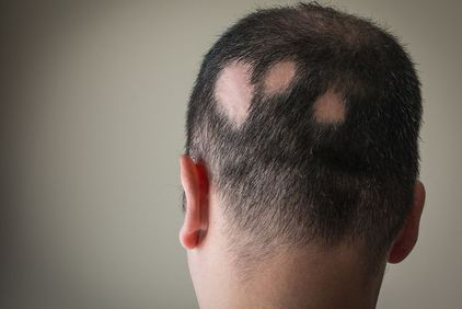 Back of man's head with large bald spots