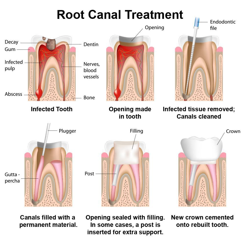 Illustration showing steps of root canal treatment