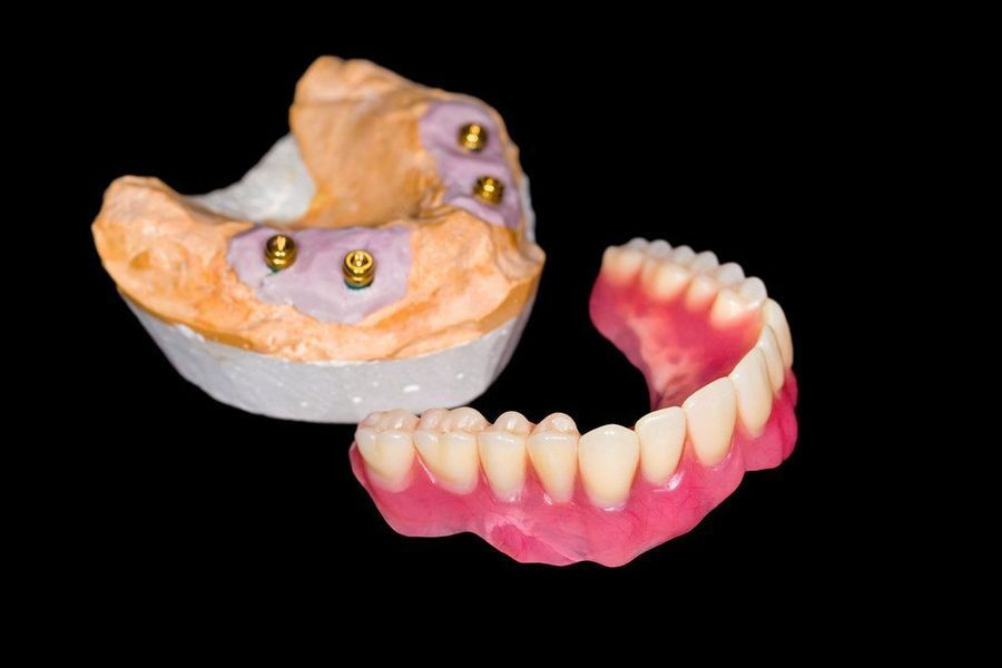 Denture and model of jaw with implants