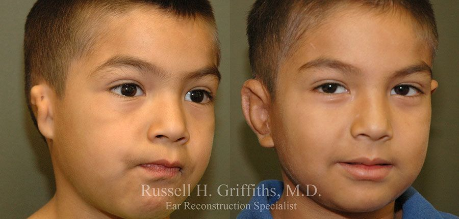 Before and After: One-stage microtia ear reconstruction surgery with rib graft