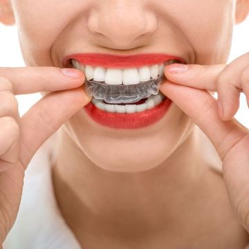 Woman with red lipstick inserting clear aligner