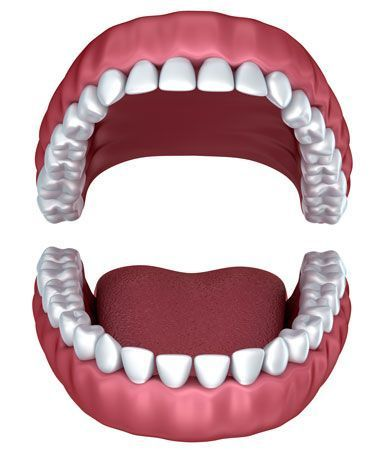 illustration of 3M dentures