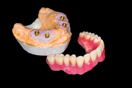 Photo of All-on-4 implant mold and restoration