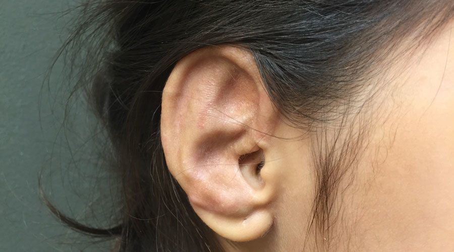 After One-stage microtia ear reconstruction surgery by Dr. Russell H. Griffiths MD