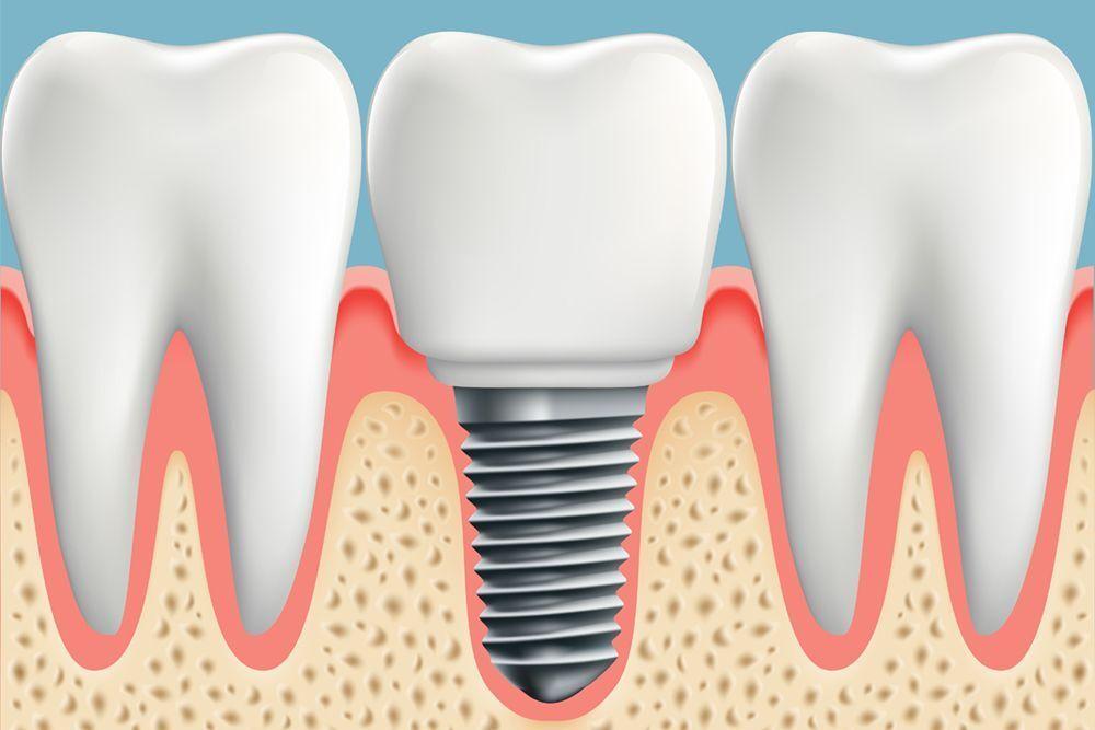An illustration of a dental implant