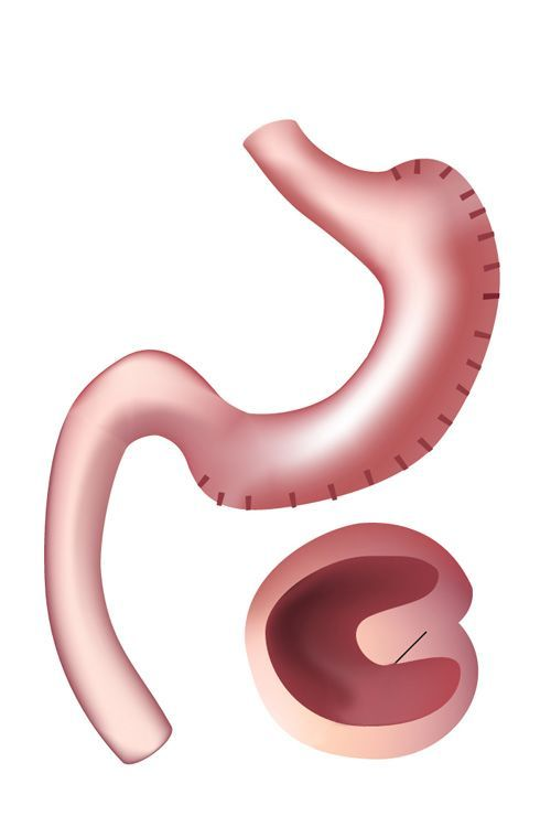 Illustration of gastric sleeve plication