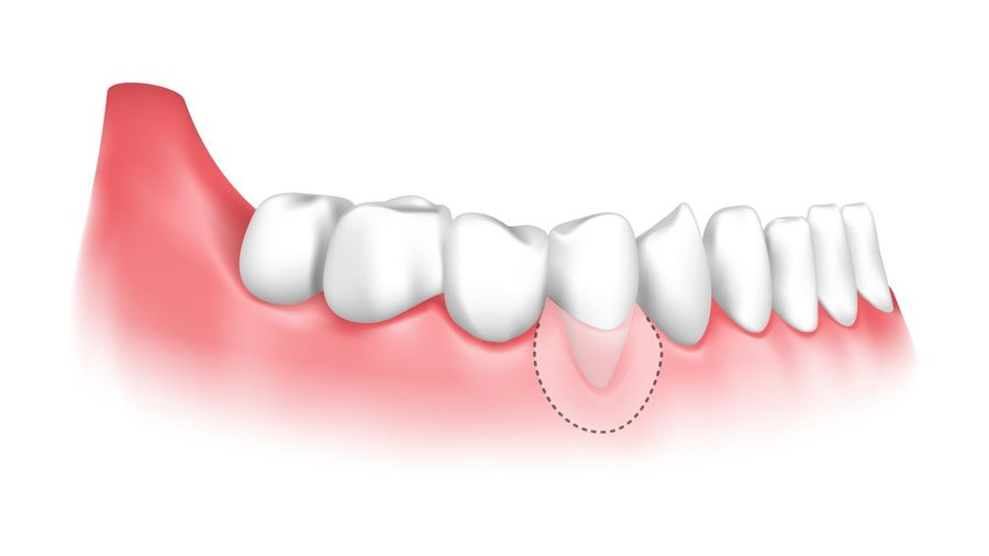 An illustration showing how a gum graft can treat gum recession.