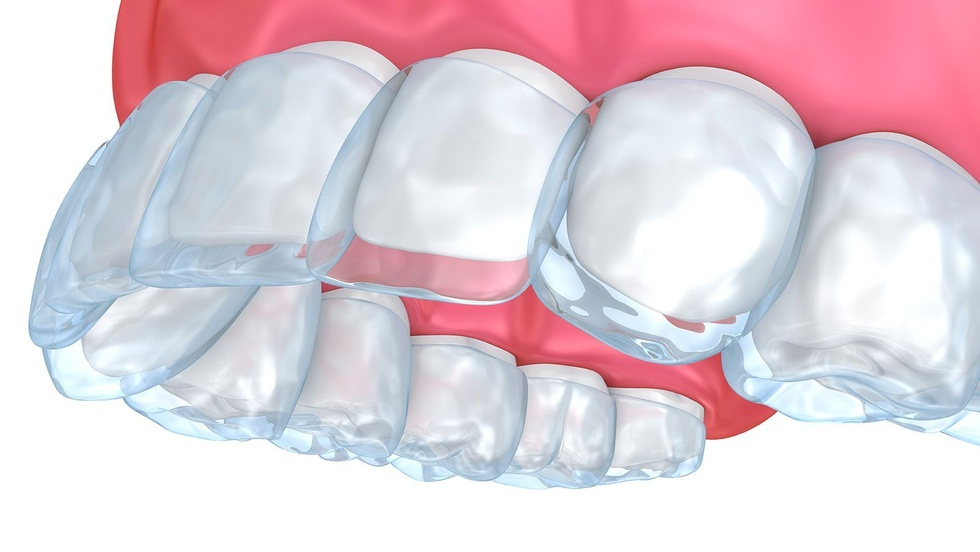 Illustration demonstrating how the ClearCorrect dental tray fits over the teeth.