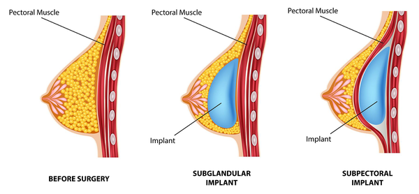 Ilustration comparing submuscular and subglandular implant placement