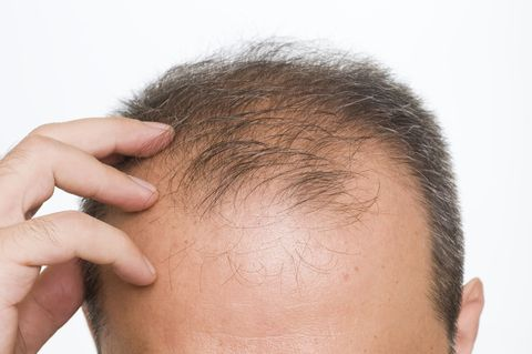 Man with thinning hair touching scalp