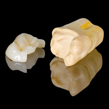 Close up of dental inlay and onlay before restorative dentistry procedure