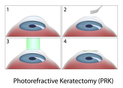 Illustration of PRK surgery on the eye.