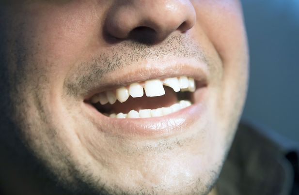 A man with a chipped tooth