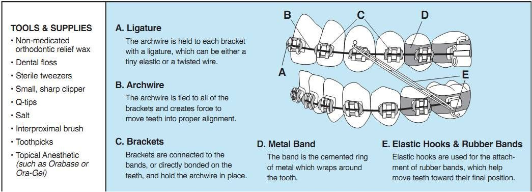 Orthodontic Emergencies - Avon, CT - Simsbury, CT - Farmington, CT